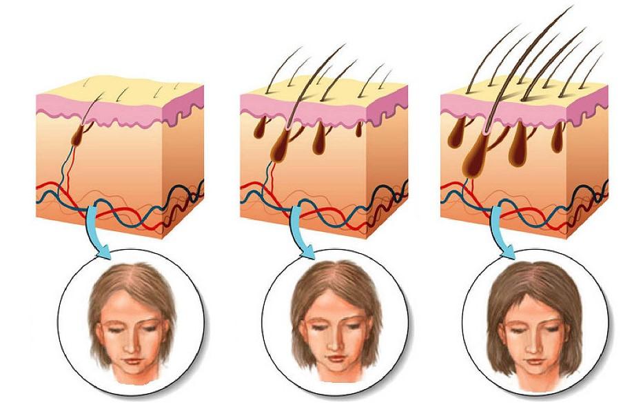 Изменение толщины волоса, частоты роста и скорости роста