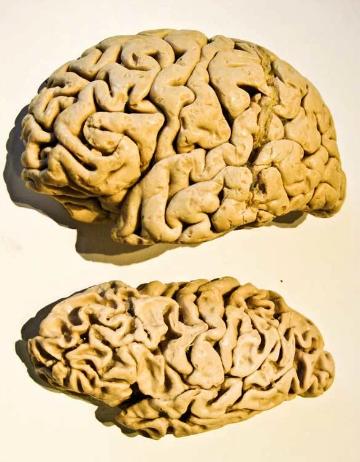 Сверху мозг здорового человека, снизу - больного деменцией.
